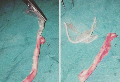 Unbelievable!! Condom Found Inside A Woman's Appendix (Photos)